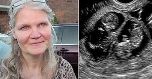 O femeie de 42 de ani era însărcinată cu triplete. Apoi medicul se uită mai atent şi spune 4 cuvinte care îi fac pe toţi să suspine