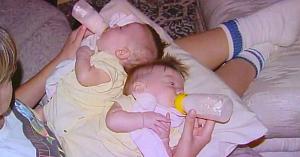 Părinţii au fost de acord cu operaţia riscantă de separare a gemenelor de 7 luni. Priviţi-le 17 ani mai târziu