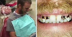 Jenat de aspectul dinţilor săi, acest tată face o vizită la dentist. 2 ore mai târziu priveşte în oglindă şi izbucneşte în lacrimi